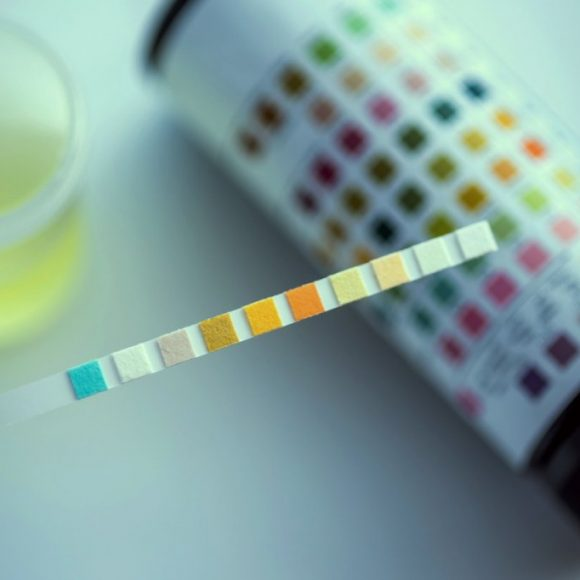 Se uso CBD posso risultare positivo a un test antidroga?