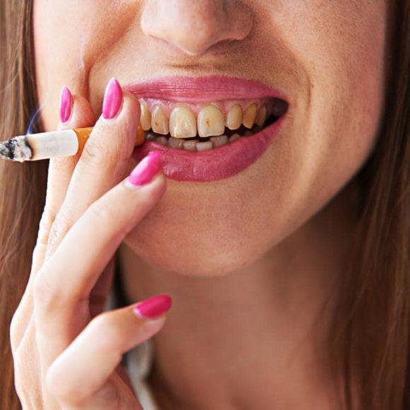 Ecco come proteggere i denti dal fumo